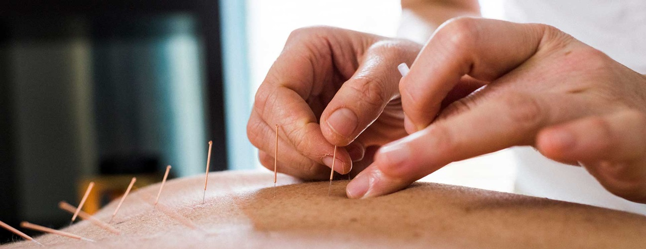 Acupuncture_hero